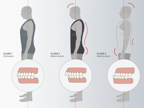 Legame malocclusione mandibolare e mal di schiena