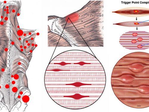 Confronto sindrome del dolore miofasciale e fibromialgia