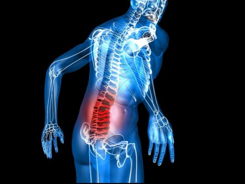 Studio sul mal di schiena cronico e depressione