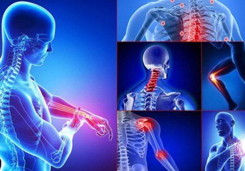 Fibromialgia | Gli effetti positivi della danza sul dolore