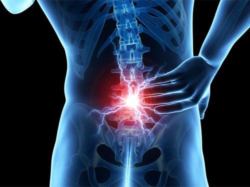 Esercizi per il dolore da lombalgia cronica aspecifica